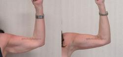 Brachioplasty (Arm Lift) with Liposuction of Arms