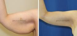 Brachioplasty (Arm Lift)