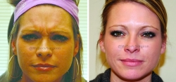 Botox treated in the Frontalis (forehead) and Glabella (between the eyes)
