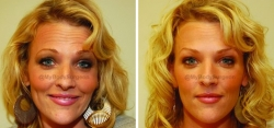 Botox treated in the Frontalis (forehead), Glabella (between the eyes), and Crow's Feet (around the eyes)
