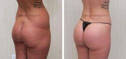Liposuction of Abdomen, Flanks, Lower Back, Inner & Outer Thighs, Bilateral Fat Transfer to Buttocks