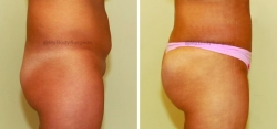 Liposuction of Abdomen -Liposuction of Flanks - Bilateral Fat Transfer to Buttocks