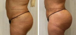 Liposuction of Abdomen - Liposuction of Flanks - Liposuction of Back - Bilateral Fat Transfer to Buttocks