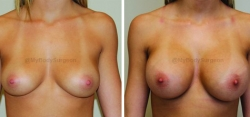 Breast Augmentation - 350 cc High Profile Silicone Implants - Implant Placed Under Muscle - Incision in Breast Crease