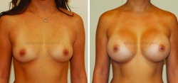 Breast Augmentation - 450 cc High Profile Silicone Implants - Implant Placed Under Muscle - Incision in Breast Crease