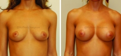 Breast Augmentation - 400 cc High Profile Silicone Implants - Implant Placed Under Muscle - Incision in Breast Crease