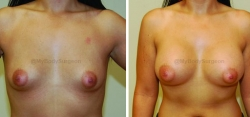 Breast Augmentation - 425 cc High Profile Silicone Gel Implants - Implant Placed Under Muscle - Incision in Breast Crease