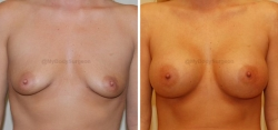 Breast Augmentation - 450 cc HP Silicone Gel Implants - Implant Placed Under Muscle - Incision in Breast Crease