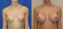 Breast Augmentation - 335 cc 410 Shaped MF (Moderate Height, Full Projection) Silicone Gel Implants - Implant Placed Under Muscle - Incision in Breast Crease
