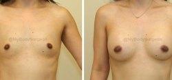 Breast Augmentation - 300 cc HP Silicone Gel Implants - Implant Placed Under Muscle - Incision in Breast Crease