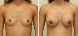 Breast Augmentation - 350 cc HP Silicone Gel Implants - Implant Placed Under Muscle - Incision in Breast Crease