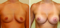 Breast Augmentation - 450 cc High Profile Silicone Gel Implants - Implant Placed Under Muscle - Incision in Breast Crease