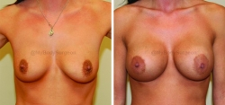 Breast Augmentation - Left 450 cc High Profile Silicone Implant - Right 475 cc High Profile Silicone Implant - Implant Placed Under Muscle - Incision in Breast Crease