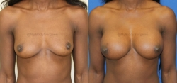 Breast Augmentation - 375 cc HP Silicone Gel -Implants Implant Placed Under Muscle - Incision in Breast Crease