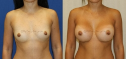 Breast Augmentation - 400 cc HP Silicone Gel Implants - Implant Placed Under Muscle - Incision in Breast Crease