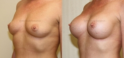 Breast Augmentation - 375 cc HP Silicone Gel Implants - Implant Placed Under Muscle - Incision in Breast Crease