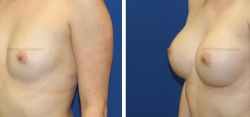 Breast Augmentation - 325 cc HP Silicone Gel Implants - Implant Placed Under Muscle - Incision in Breast Crease