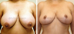 Breast Lift - No Implants