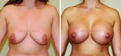 Breast Lift - Breast Augmentation - 375 cc High Profile Silicone Implants - Implant Placed Under Muscle
