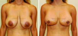 Breast Lift - Breast Augmentation - 450 cc High Profile Silicone Implants - Implant Placed Under Muscle