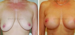Breast Lift - Breast Augmentation - 325 cc High Profile Silicone Implants - Implant Placed Under Muscle No Skin Removed