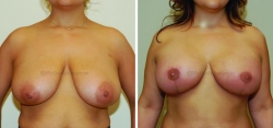 Breast Lift - Breast Augmentation - 300 cc High Profile Silicone Implants - Implant Placed Under Muscle