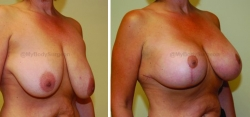 Breast Lift - Breast Augmentation - 400 cc High Profile Silicone Implants - Implant Placed Under Muscle