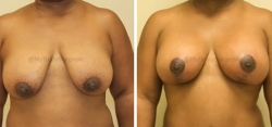 Breast Lift - Breast Augmentation - 250 cc High Profile Silicone Implants - Implant Placed Under Muscle