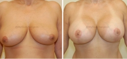Breast Lift - Breast Augmentation - 325 cc High Profile Silicone Implants - Implant Placed Under Muscle