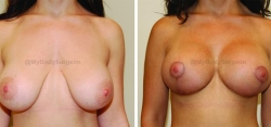Breast Lift - Breast Augmentation - 350 cc High Profile Silicone Implants - Implant Placed Under Muscle