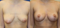 Breast Lift - Breast Augmentation - Left 325 cc, Right 200cc High Profile Silicone Implants - Implant Placed Under Muscle