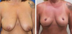 Breast Lift - No Implants