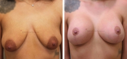Breast Lift -Breast Augmentation - 340 cc Inspira Textured Extra-Full Profile Silicone Implants - Implant Placed Under Muscle