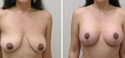 Breast Lift -Breast Augmentation - 340 cc Inspira Textured Extra-Full Profile Silicone Gel Implants - Implant Placed Under Muscle