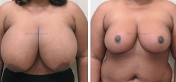 Breast Lift / Breast Reduction