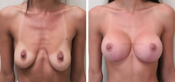Breast Lift -Breast Augmentation - 340 cc Inspira (SRX) Smooth Round Extra-Full Profile Silicone Gel Implants - Implant Placed Under Muscle