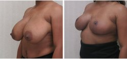 Breast Lift - Breast Reduction - No Implants-Better Breast Lift