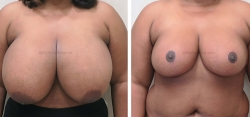 Breast Lift / Reduction