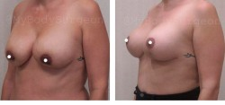 P1-breast-revision-lift