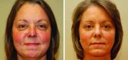 Buccal Fat Pad (cheek fat) Reduction