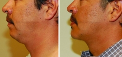 Chin Implant - Liposuction of neck
