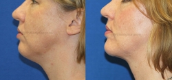 Chin implant placement