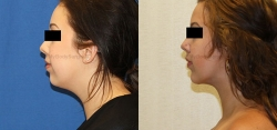 Chin implant placement - Liposuction of neck