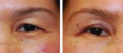 Upper eyelid surgery -Surgery performed in office.