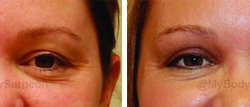 Upper Eyelid Surgery - Performed in our office.