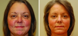 Upper and Lower Eyelid Surgery - Cheek Fat Reduction - Chin Liposuction