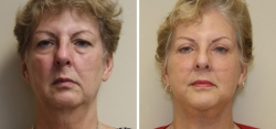 Face Lift - Upper and Lower Eyelid lift