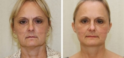 Face Lift - Fat Transfer to Nasolabial Folds & Tear Troughs