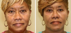 Facelift and Lower Eyelid Surgery