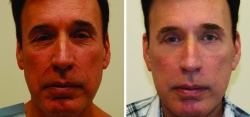 Facelift - Blepharoplasty